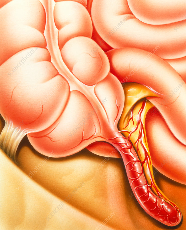 Artwork of an appendix with appendicitis