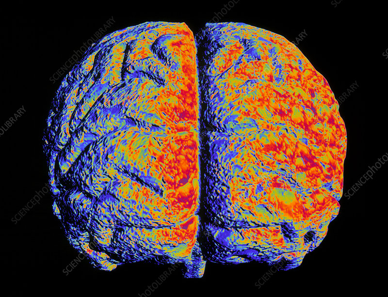 Artwork of brain with Alzheimer's disease
