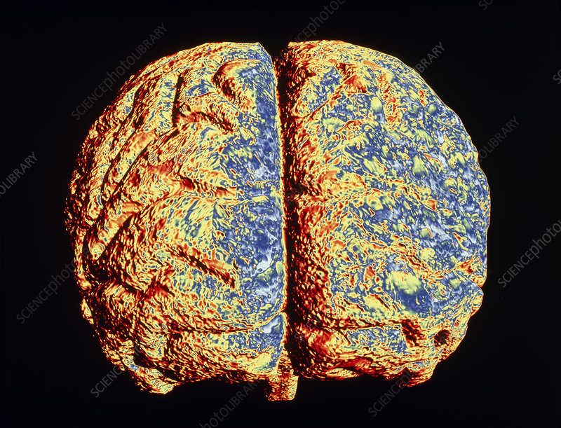 Computer artwork of brain with Alzheimer's disease
