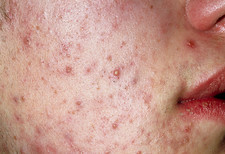 Acne vulgaris on the face of a young man