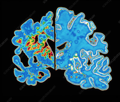 Sectioned brains: Alzheimer's disease vs normal