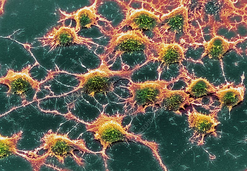 Coloured SEM of Alzheimer's disease culture cells