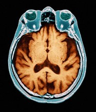 Alzheimer's disease, MRI brain scan