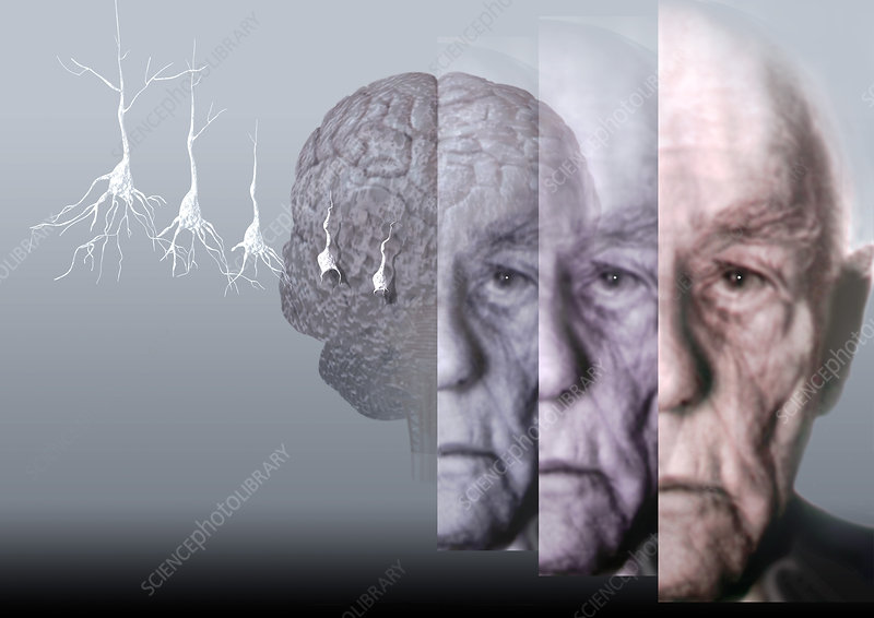 the causes and symptoms of alzheimers a degenerative brain illness What is progressive supranuclear palsywhat are the symptoms the exact cause of psp is unknown the symptoms of psp are caused by a gradual deterioration of brain cells in a few specific areas in the brain such as parkinson's and alzheimer's diseases.