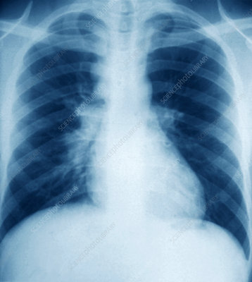 Glandular disease, lung X-ray