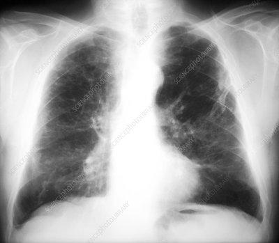 Asbestosis, X-ray