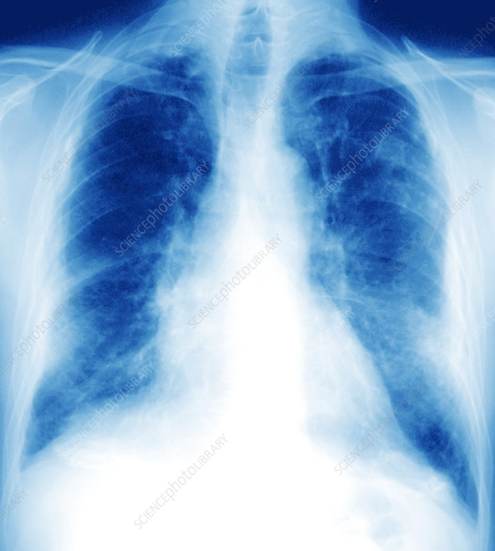 Caption: Pleural asbestosis. Frontal chest X-ray of the lungs of a ...