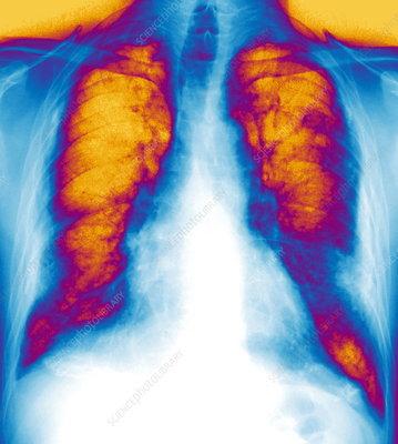 Pleural asbestosis, X-ray