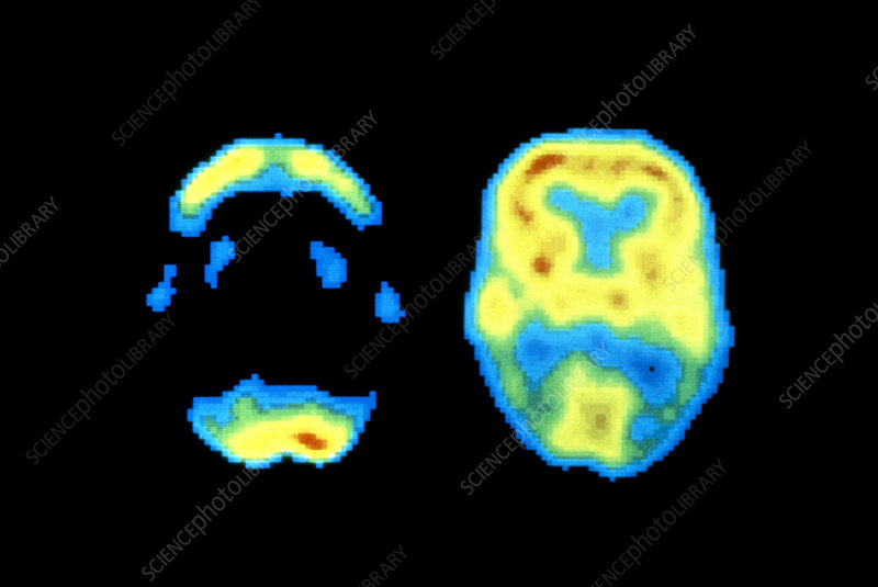PET scans of ormal and Alzheimer's brain