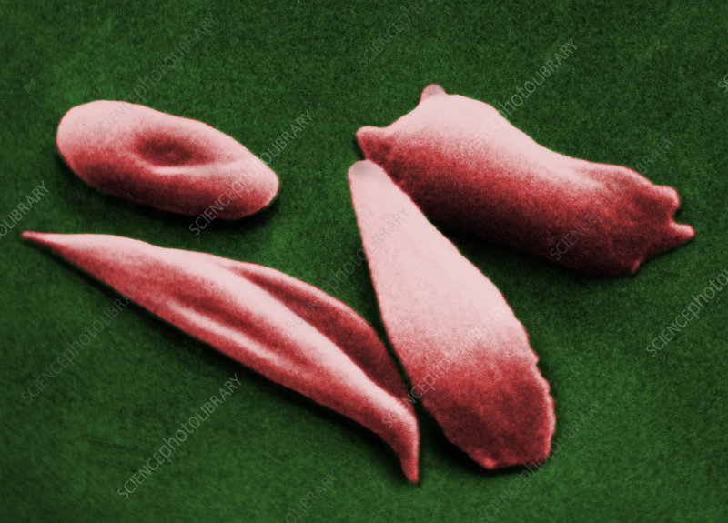 Sickled red blood cells