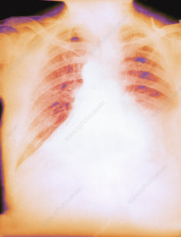 Pulmonary anthrax, X-ray