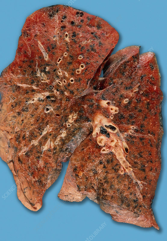 Anthracosis of the lung
