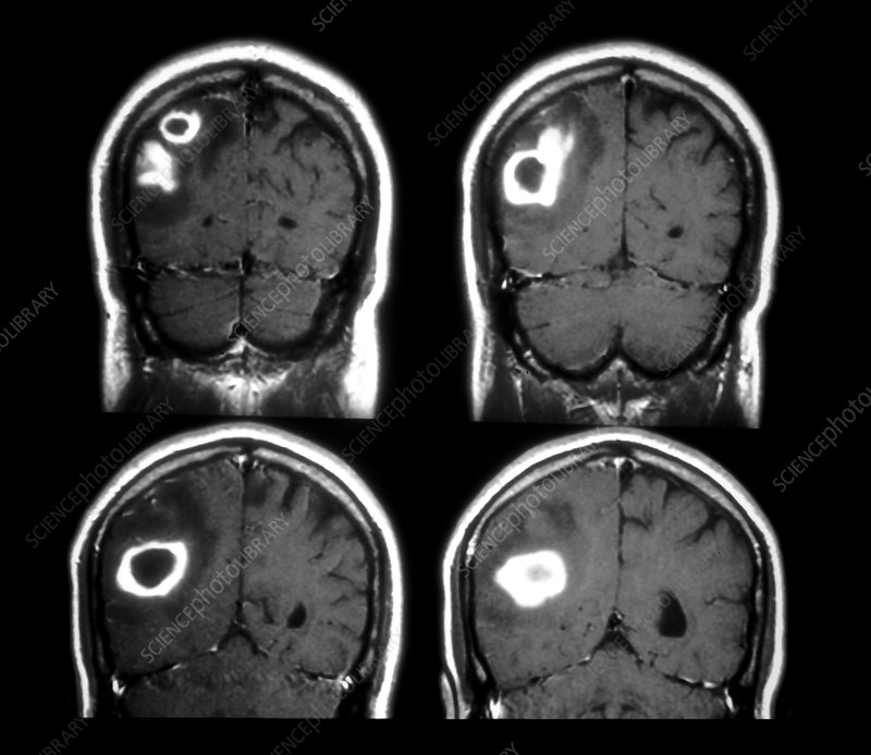 MRI of Staphylococcus Abscess