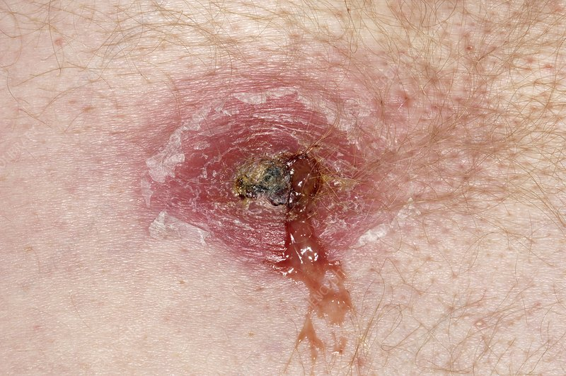 Abscess near pubic region