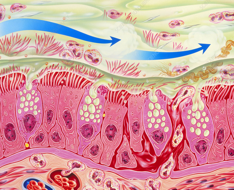 Artwork of inflamed bronchial epithelium in asthma