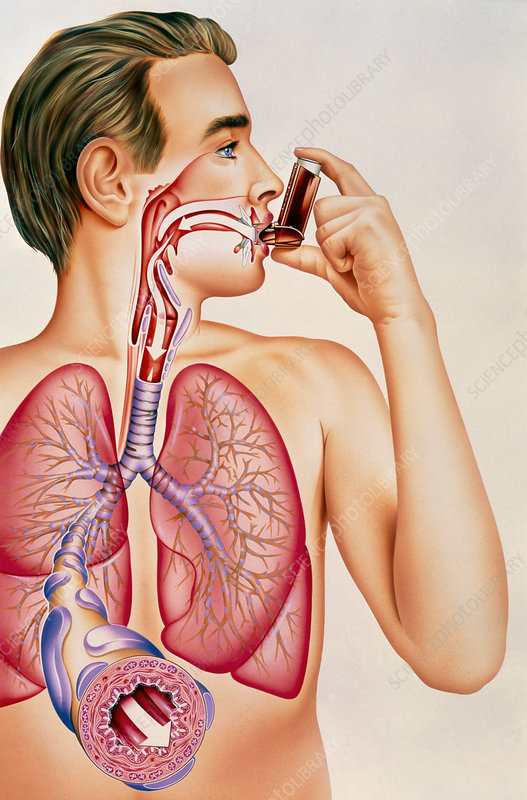 Artwork of effects of asthma inhaler on man's lung