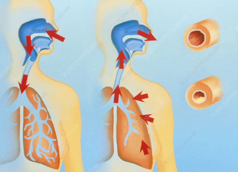 Artwork of asthma attack due to allergic reaction
