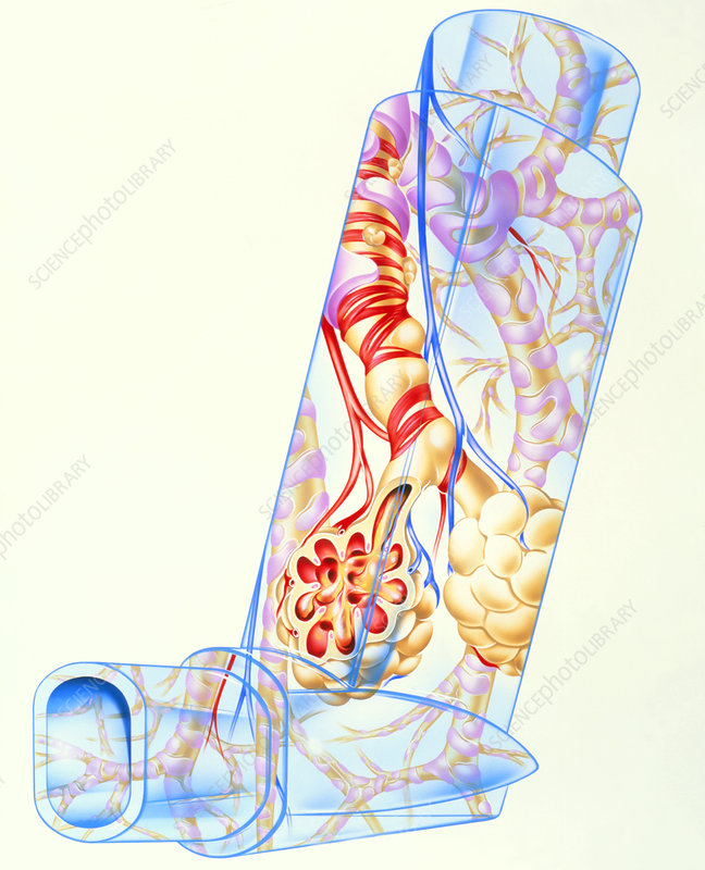 Artwork of asthmatic respiratory system on inhaler