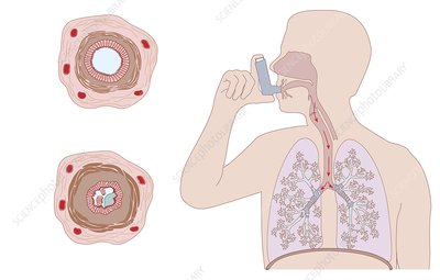 Asthma pathology and treatment, diagram