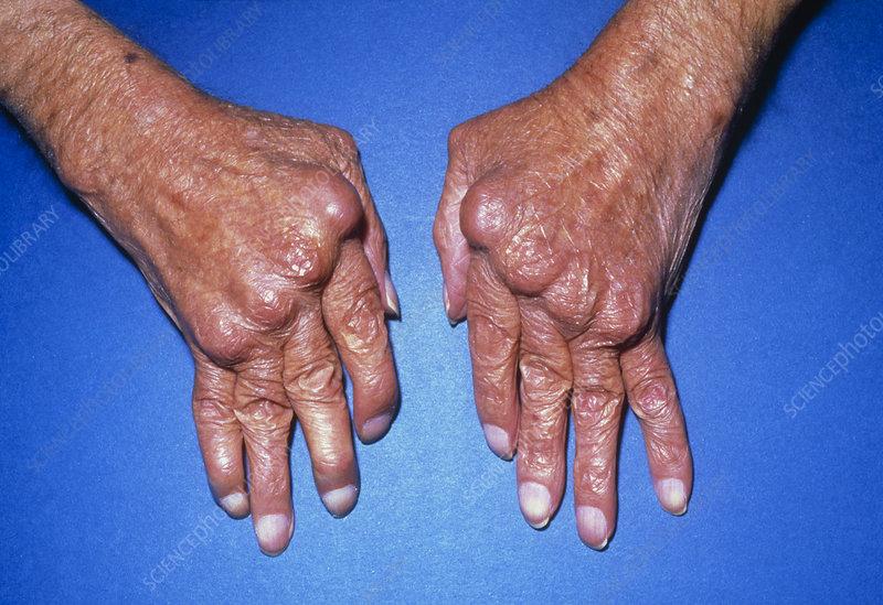 Menghilangkan rasa sakit asam urat di kaki
