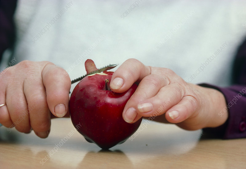 Person with arthritic hands peeling an apple.