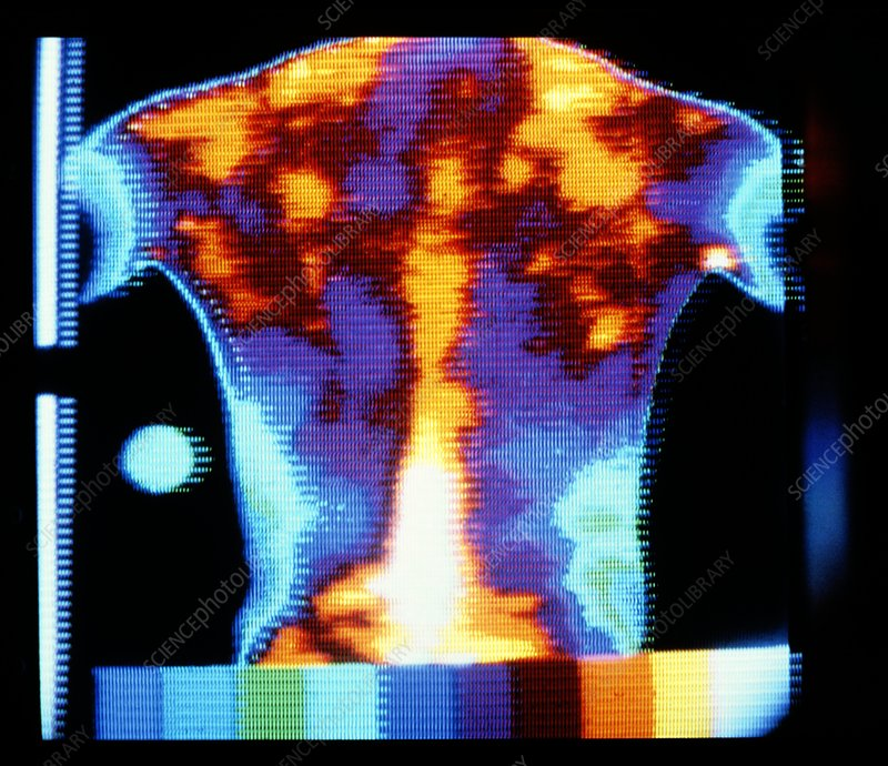 Thermogram of a man's rheumatic back
