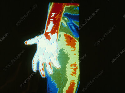 Thermogram of hand of rheumatoid arthritis patient