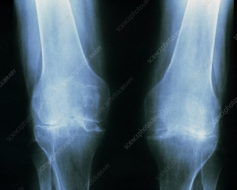 Tinted X-ray of rheumatoid arthritis in the knees. - Stock ...