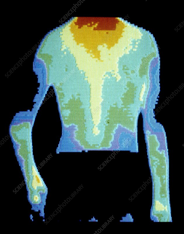 Thermogram of right elbow in juvenile arthritis