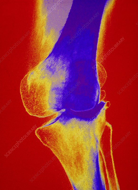 F/col X-ray of arthritic knee joint
