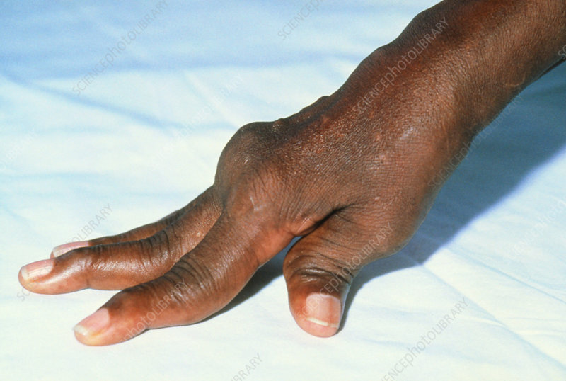 Rheumatoid arthritis in hands of Jamaican patient