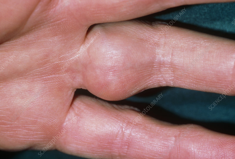 Clinical photo of synovitis in finger joint