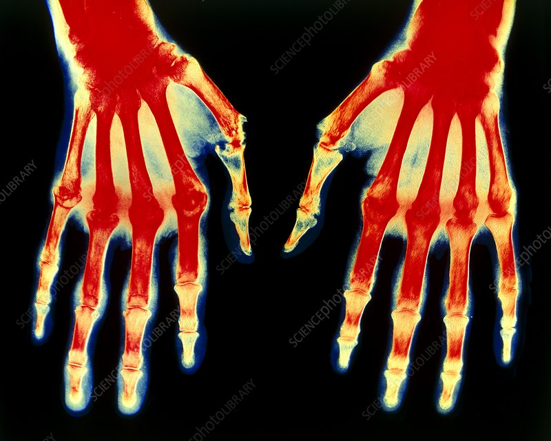 Col. X-ray of rheumatoid arthritis in both hands