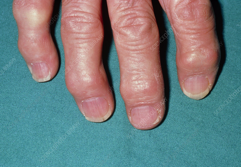 Arthritic hand showing Heberden's nodes on fingers