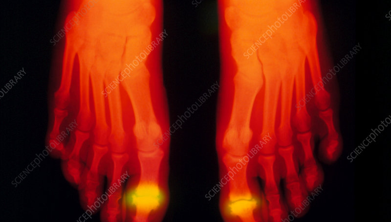 False-colour X-ray of feet: rheumatoid arthritis