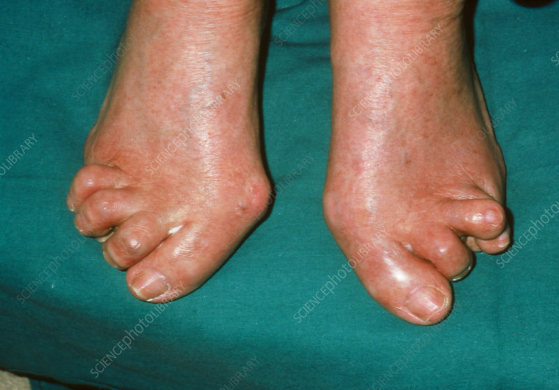 Feet Severely Affected By Rheumatoid Arthritis Stock Image M110 0313 Science Photo Library