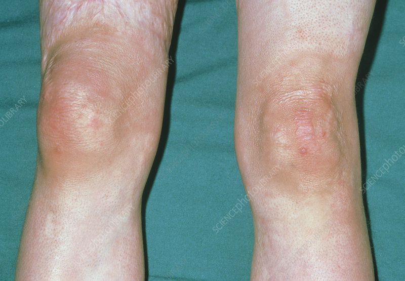 Close up: knees compared for acute monoarthritis
