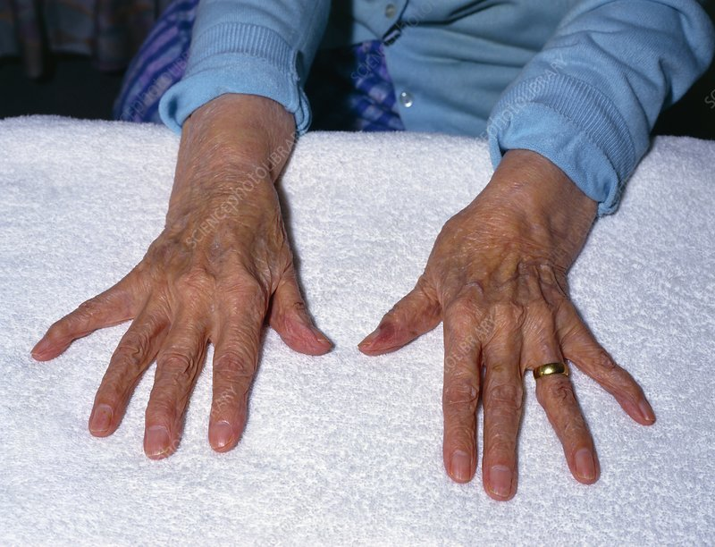 Elderly ladies arthritic hands spread out