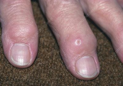 essay on rheumatoid arthritis