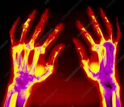 Col X-ray of hands with rheumatoid arthritis