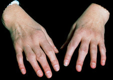 Hands of a patient with rheumatoid arthritis