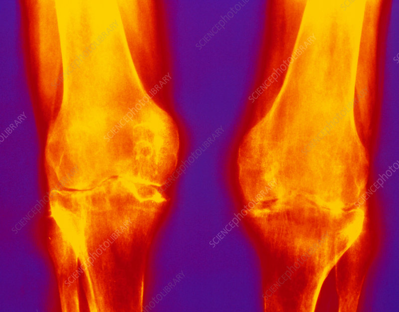X-ray of rheumatoid arthritis in knees