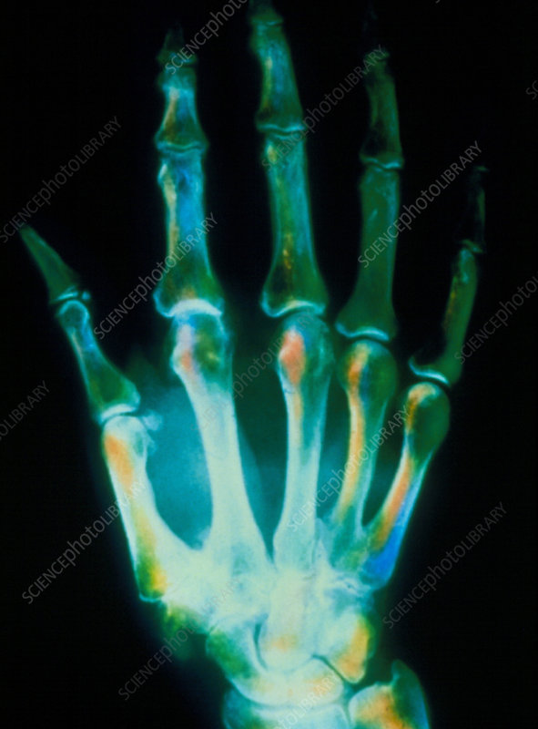 Coloured X-ray of a hand with osteoarthritis