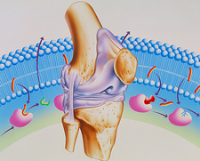 Artwork of arthritic knee and NSAID drug mechanism