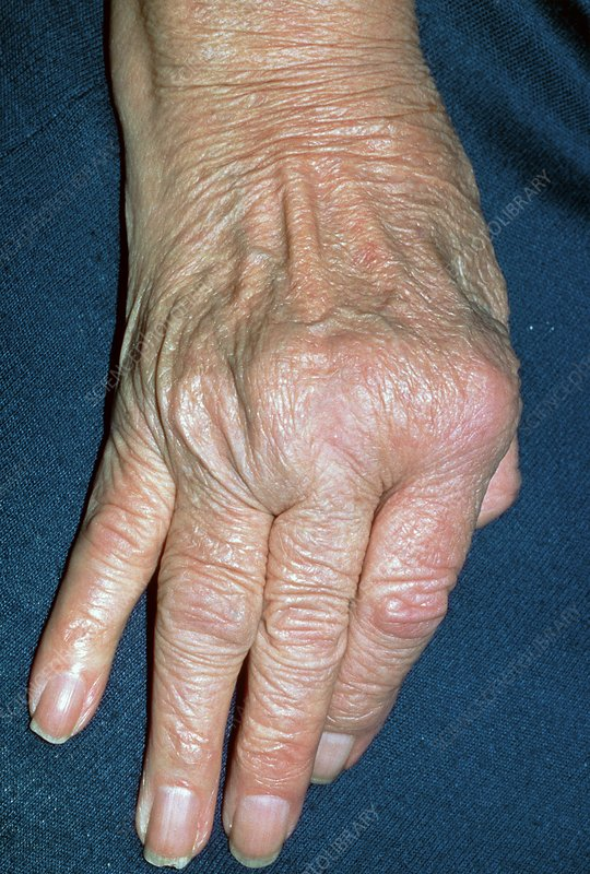 Rheumatoid arthritis of hand with ulnar deviation