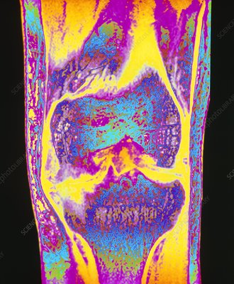 Colour MRI scan of knee joint with osteoarthritis
