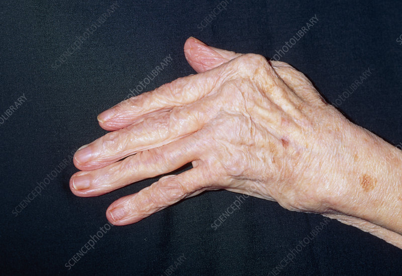 Hand of elderly woman with rheumatoid arthritis