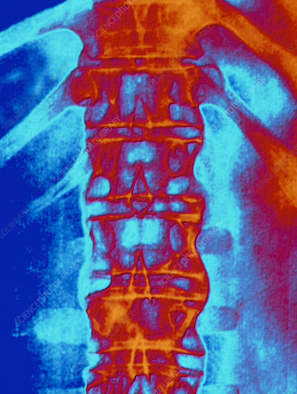 Coloured spinal X-ray: ankylosing spondylitis