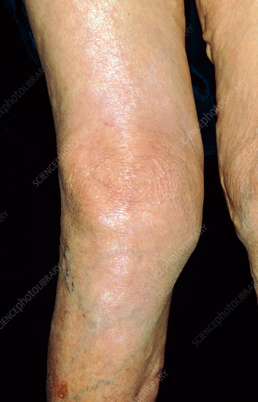 Elderly woman's knee affected by osteoarthritis