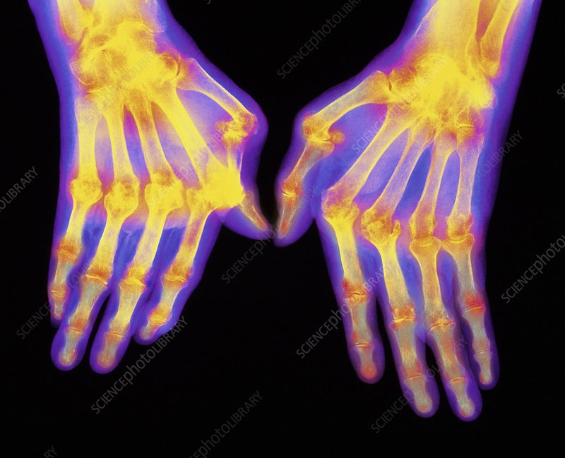 Coloured X-ray of hands with rheumatoid arthritis